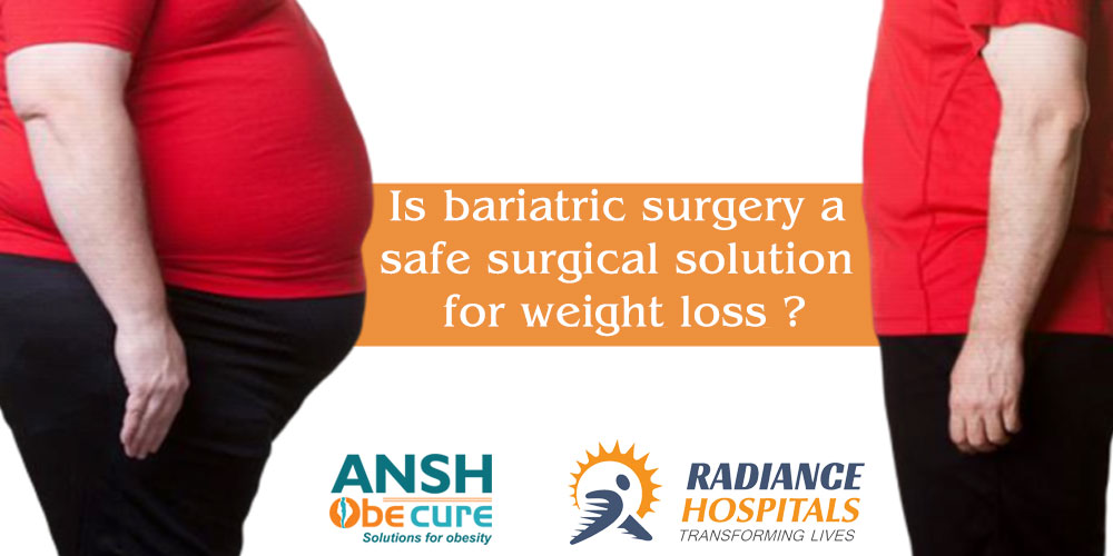 bariatric-surgery-in-ahmeadbad