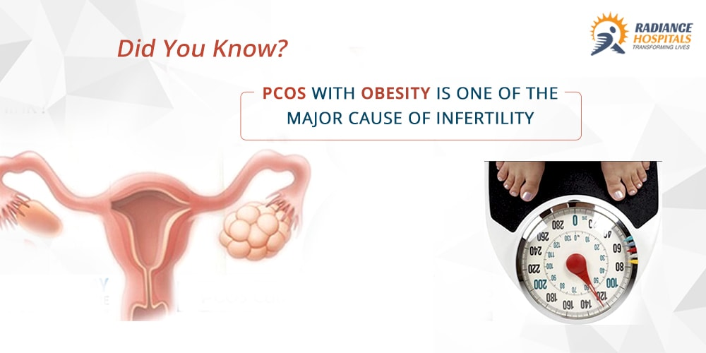 PCOS with obesity